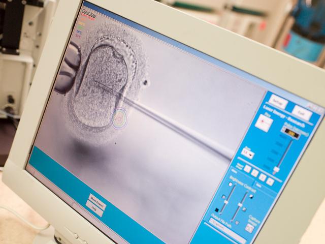 Перенос Эмбриона фото