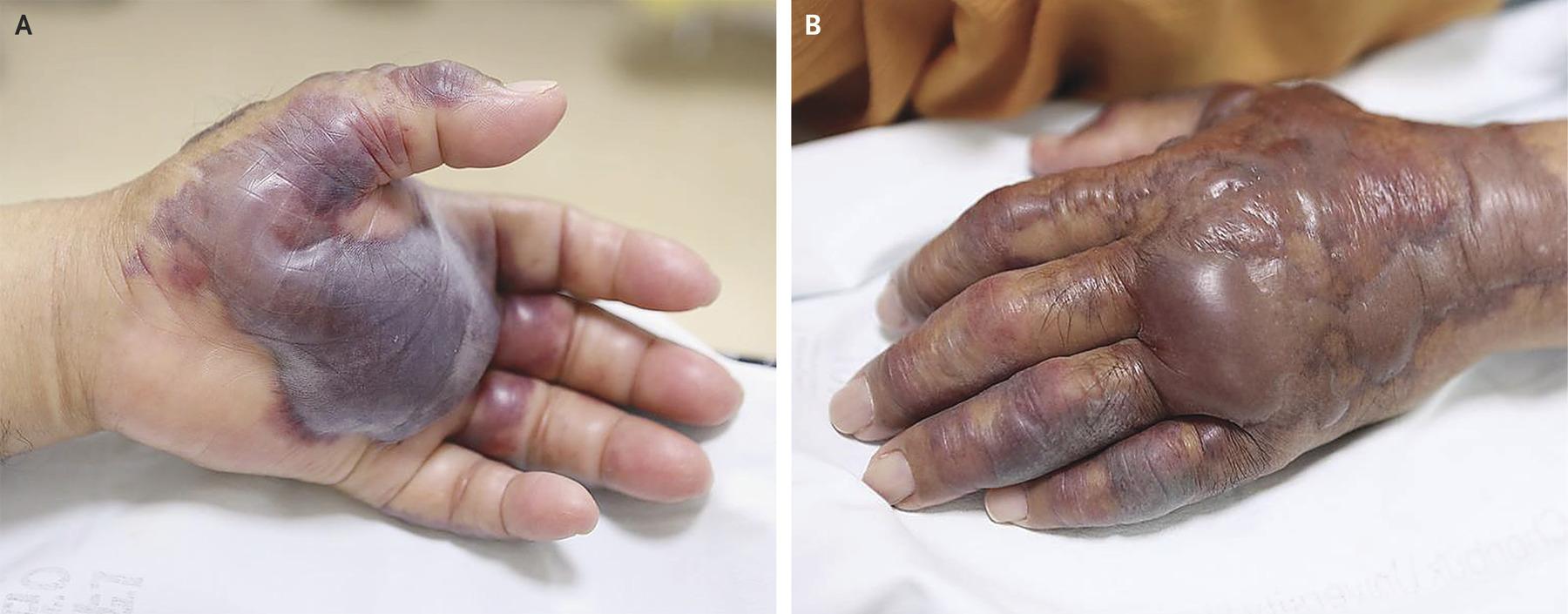 Паразиты в суставе руки боли в суставах без опухания, слабость, сухость кижи