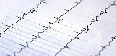 Невроз стресс инфаркт - Лечение неврозов