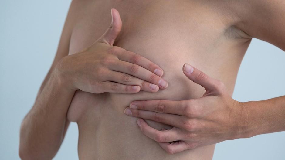 Гормональные контрацептивы повышают риск рака груди на38% — Ученые
